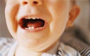 تاثیر دوران بارداری در سلامت دندان کودک